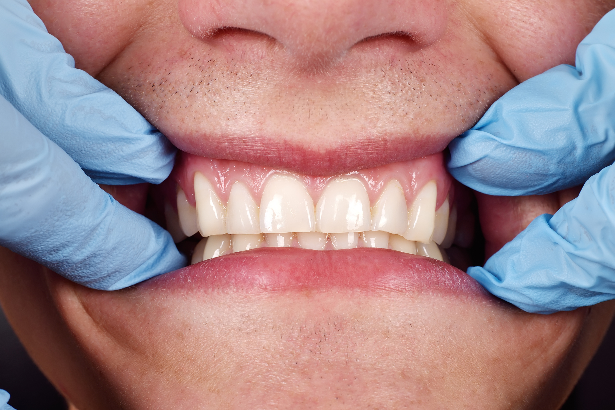 How to Catch, Treat and Cure Gum Disease